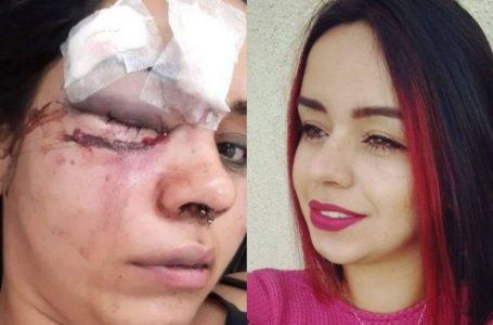 Jovem relata ter sido espancada por namorado após discussão em casa noturna: 'Vi a morte' em Jundiaí
